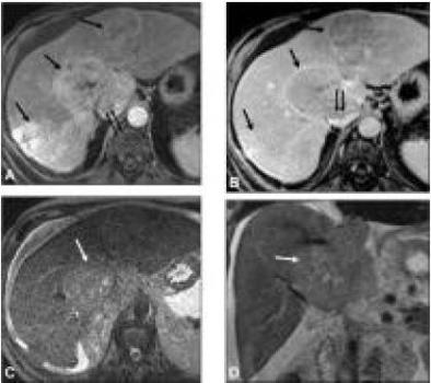 MRIganac1