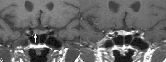 MRI tyen13
