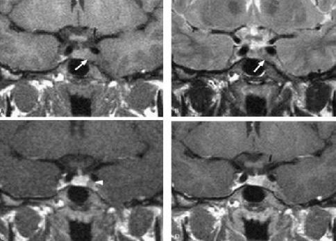 MRI tyen15