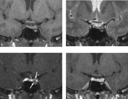 MRI tyen16