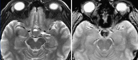 MRI tyen18