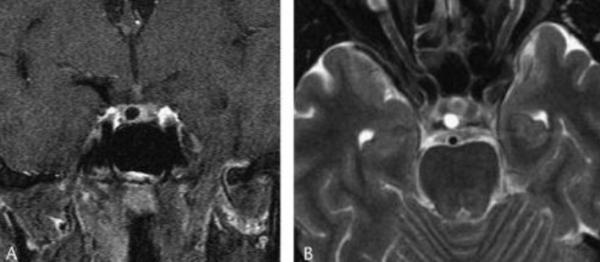 MRI tyen2