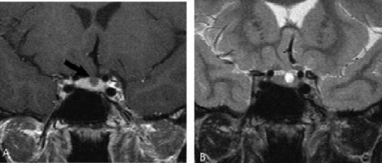 MRI tyen3